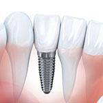 Ортопедическая стоматология импланты