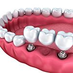 Ортопедическая стоматология несъемное протезирование