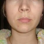 Лечение кисты зуба при недомогании