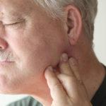 Лечение кисты зуба при увеличении лимфоузлов