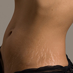 Медовое обертывание растяжки