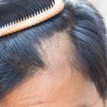 Выпадание волос