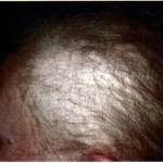 Плазмотерапия при диффузном облысении