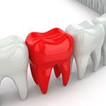 Реставрация положения зуба