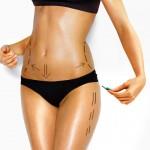 Вакуумно-роликовый массаж для коррекции контуров тела