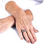 Старение кисти рук
