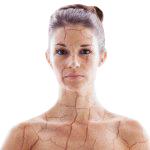 Снижение упругости кожи