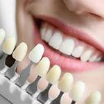 Эстетическая стоматология облицовка зубов