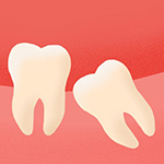 Эстетическая стоматология положение зуба