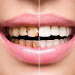 Эстетическая стоматология реставрация зубов