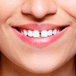 Эстетическая стоматология щель между зубами