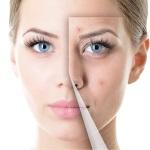 Плазмотерапия при гормональном дисбалансе