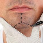 Пластическая хирургия лица пластика подбородка