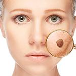 Пластическая хирургия лица удаление новообразований