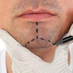 Пластическая хирургия пластика подбородка