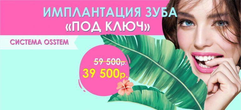 Имплантация Osstem «под ключ» всего за 39 500 рублей вместо 59 500 до конца июля!