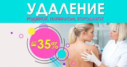 Удаление кожных новообразований (родинок, бородавок, папиллом) со скидками до 35% до конца августа!
