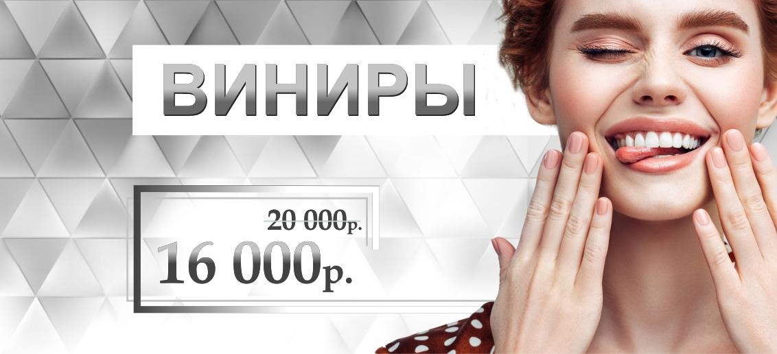 Виниры - всего 16 000 рублей до конца августа!